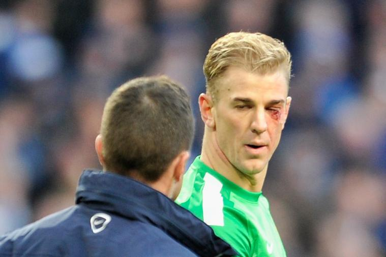 hi-res-459583163-joe-hart-of-manchester-city-looks-on-after-sustaining_crop_north