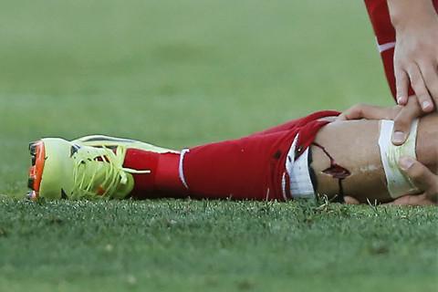 Diego Costa Injury