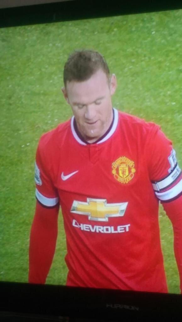 Rooney spits on chin