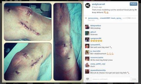 Andy Carroll injury