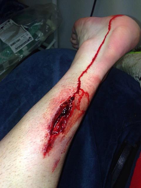 stephen ireland injury