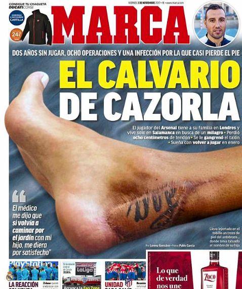 Santi Cazorla foot