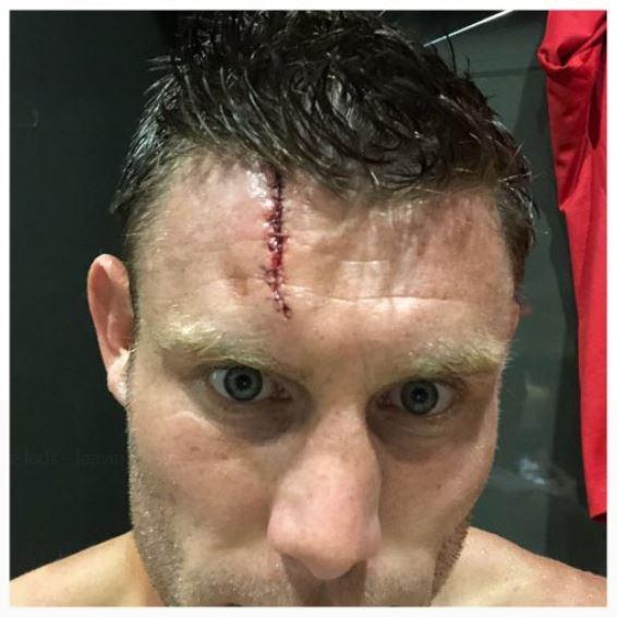 milner injury