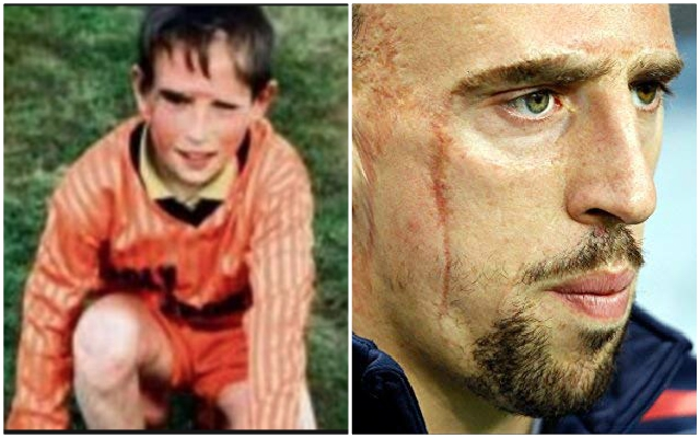 Ribery facial emotional tells scars with of story growing up